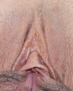 3. Clitoral Hood Reduction - Case 627 - Before