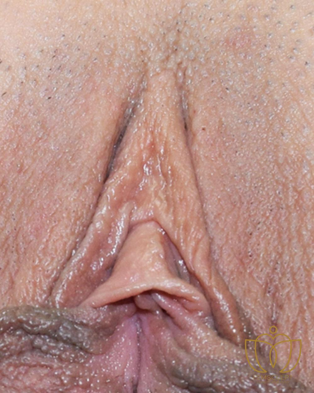 3. Clitoral Hood Reduction Patient Photo - Case 627 - before view-