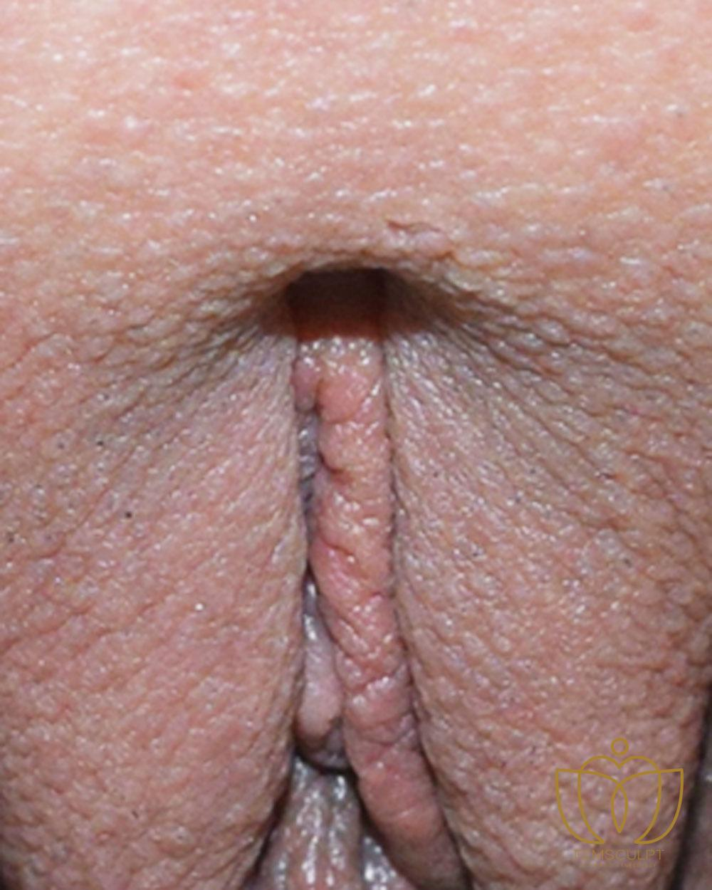 3. Clitoral Hood Reduction Patient Photo - Case 627 - before view-1