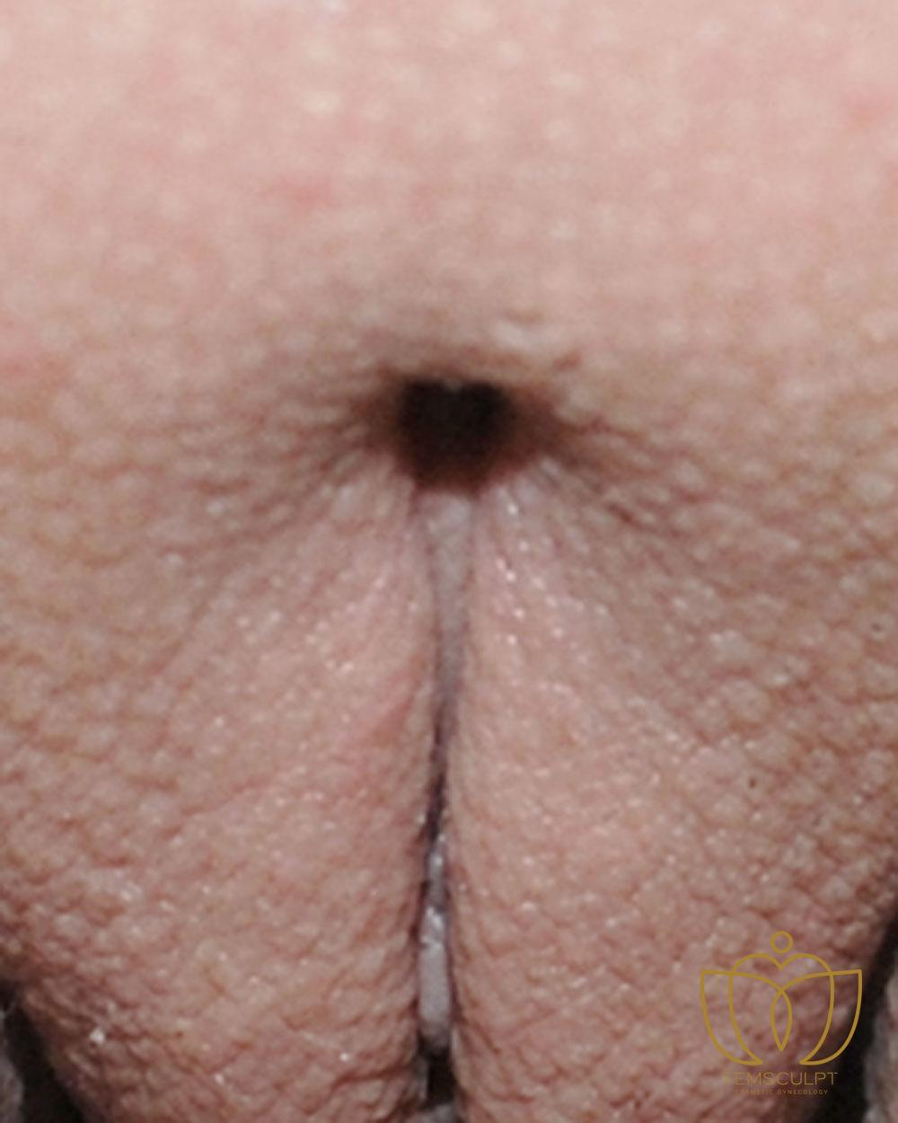 3. Clitoral Hood Reduction Patient Photo - Case 627 - after view-1