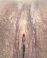3. Clitoral Hood Reduction - Case 637 - After