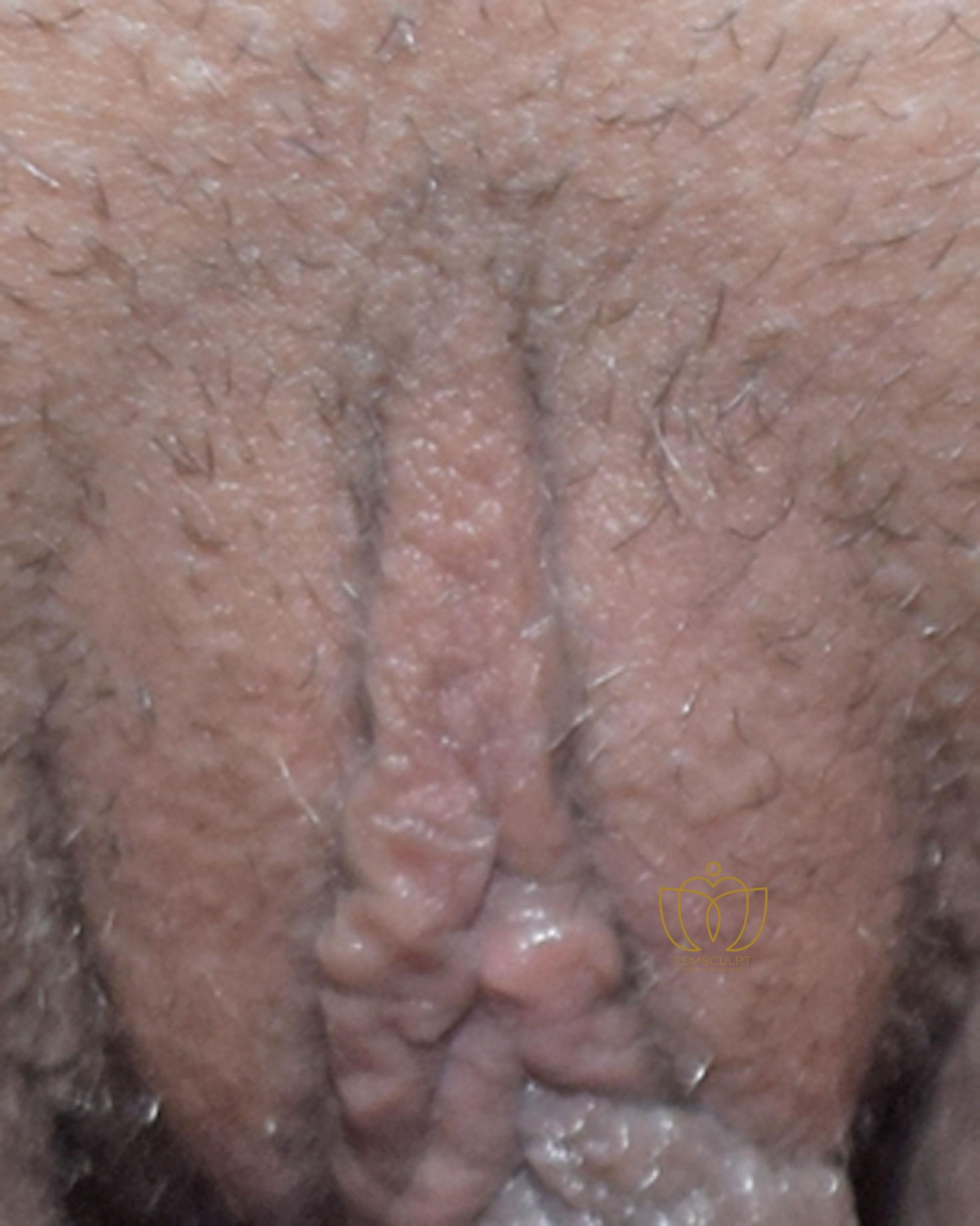 3. Clitoral Hood Reduction Patient Photo - Case 693 - before view-1