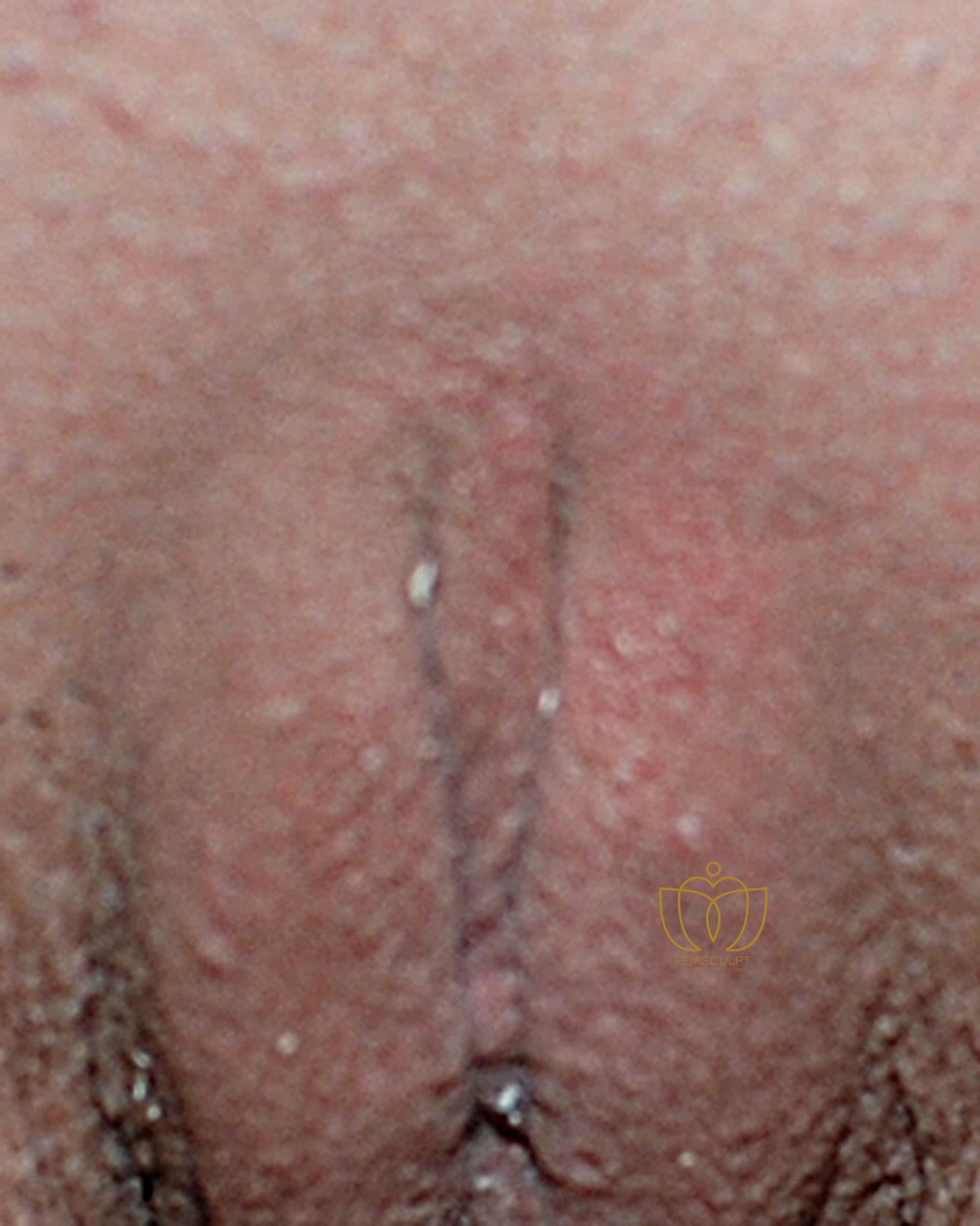 3. Clitoral Hood Reduction Patient Photo - Case 693 - after view-1