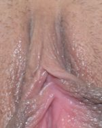 3. Clitoral Hood Reduction - Case 693 - Before