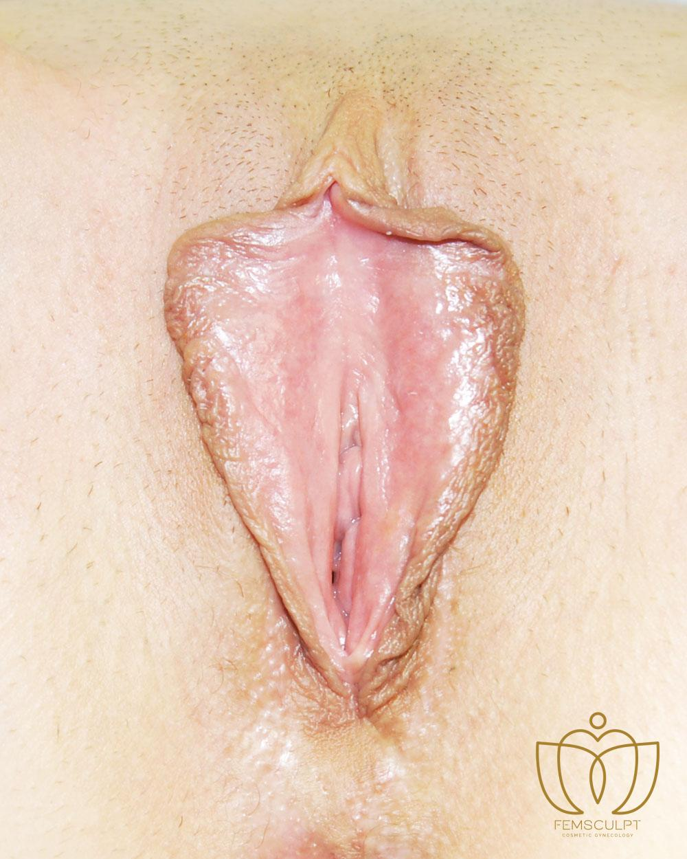 1. LABIA MINORA REDUCTION -Standing Patient Photo - Case 655 - before view-1