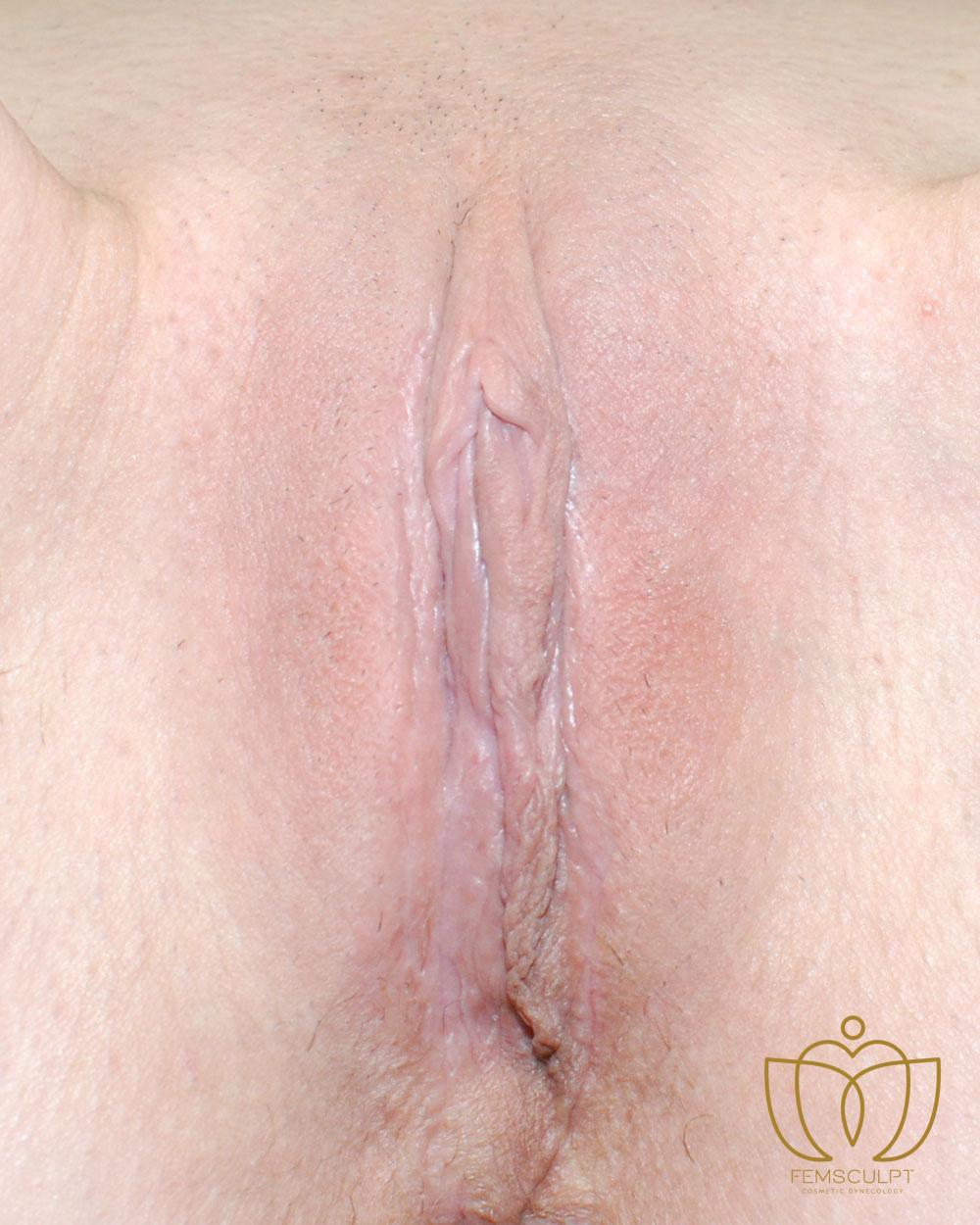 1. LABIA MINORA REDUCTION -Standing Patient Photo - Case 655 - after view-1