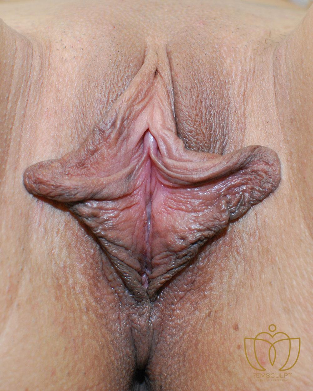 2. Labia Minora Reduction- Lithotomy Patient Photo - Case 577 - before view-