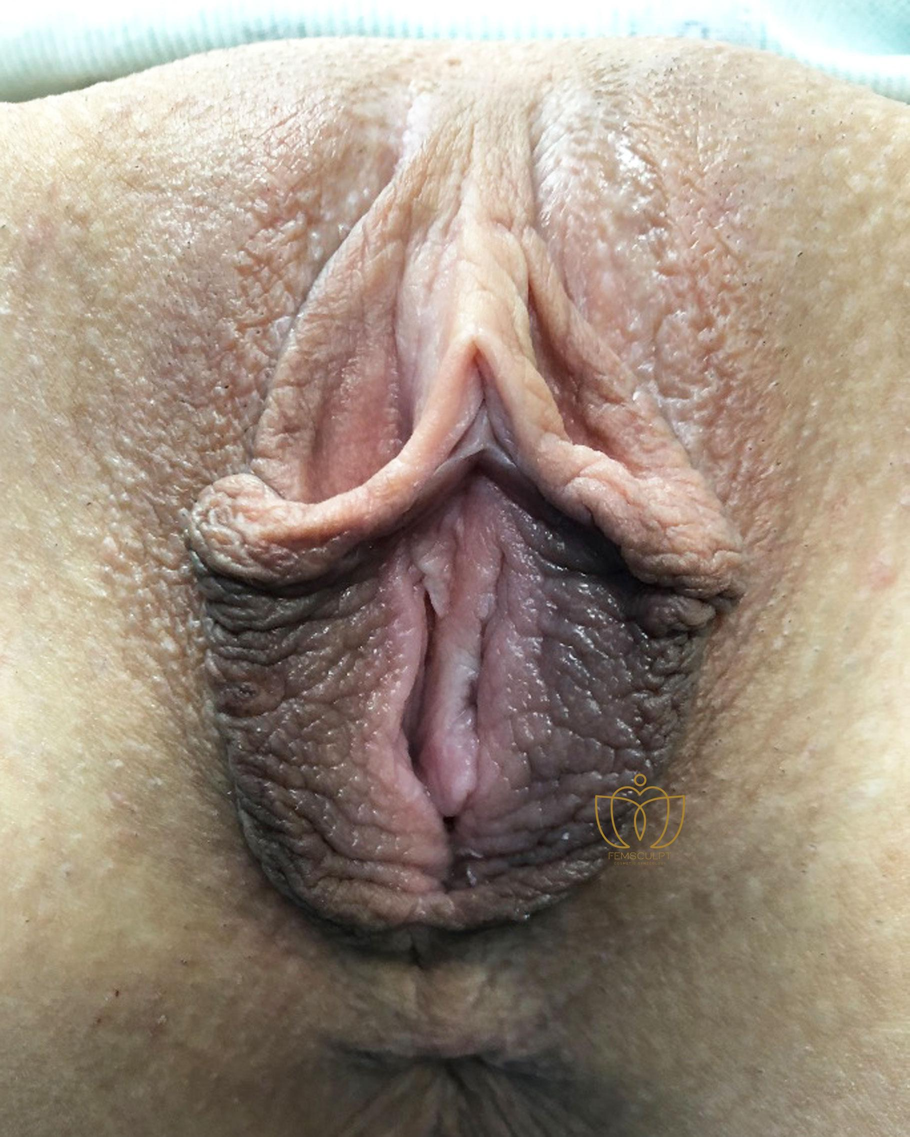 1. LABIA MINORA REDUCTION -Standing Patient Photo - Case 588 - before view-1