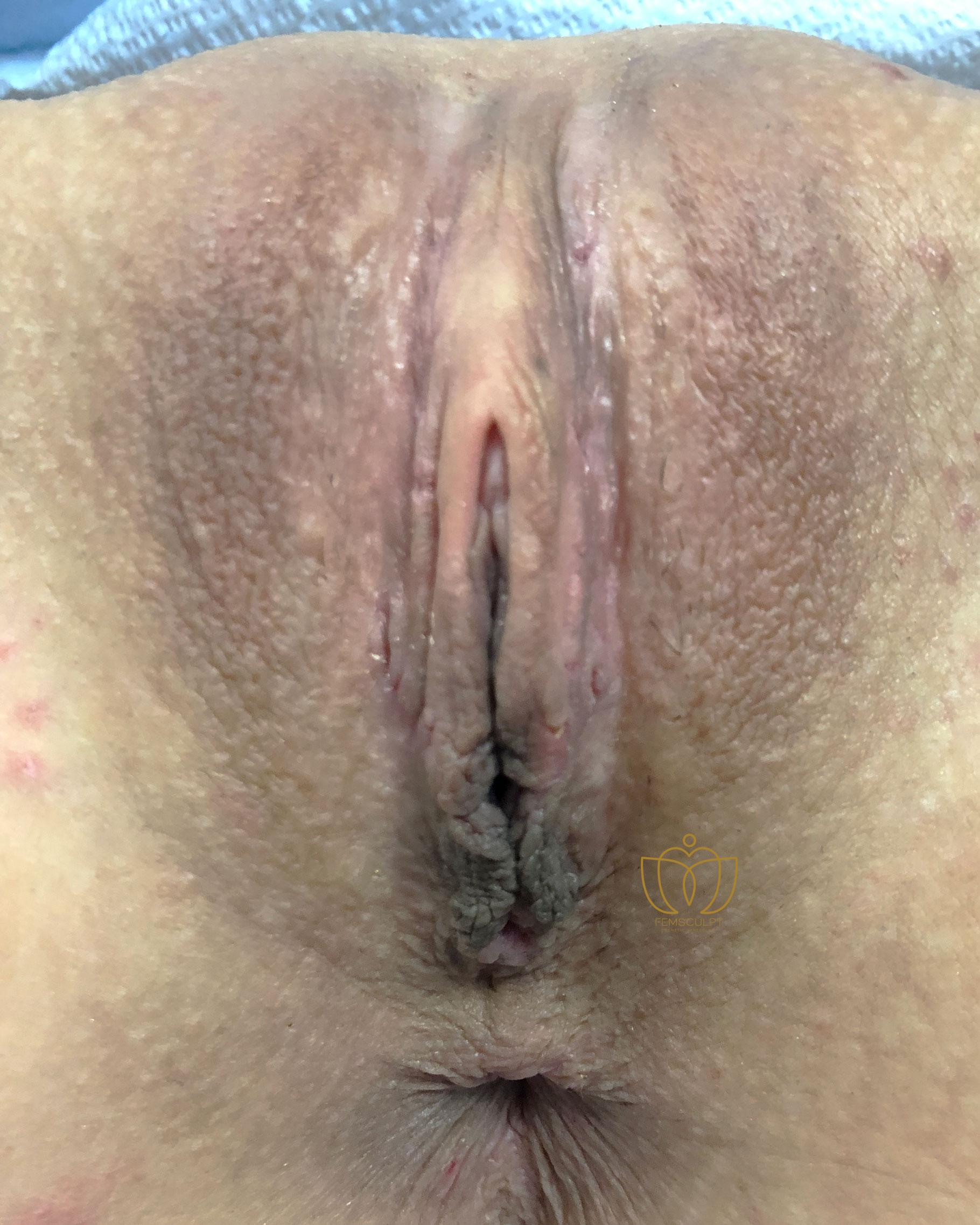 1. LABIA MINORA REDUCTION -Standing Patient Photo - Case 588 - after view-1