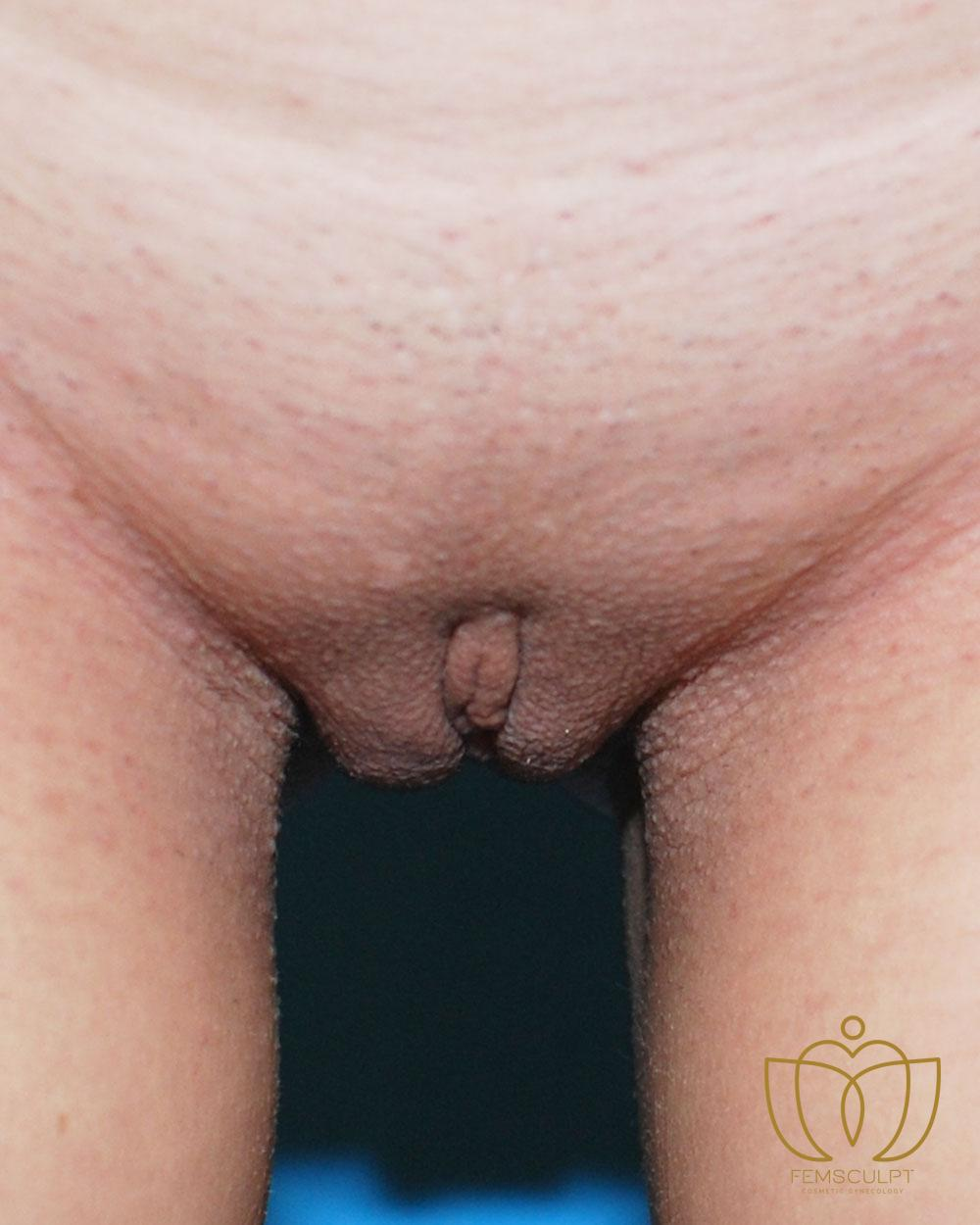 2. Labia Minora Reduction- Lithotomy Patient Photo - Case 586 - after view-1