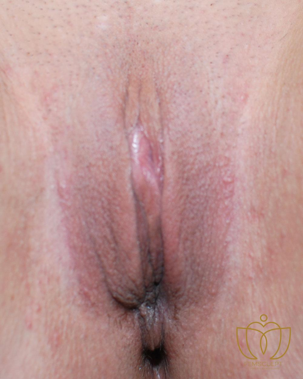 2. Labia Minora Reduction- Lithotomy Patient Photo - Case 586 - after view