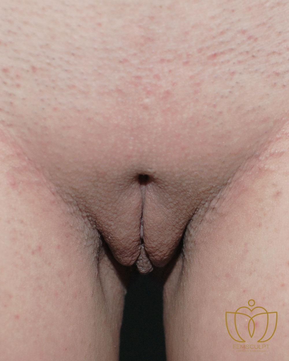1. LABIA MINORA REDUCTION -Standing Patient Photo - Case 614 - after view