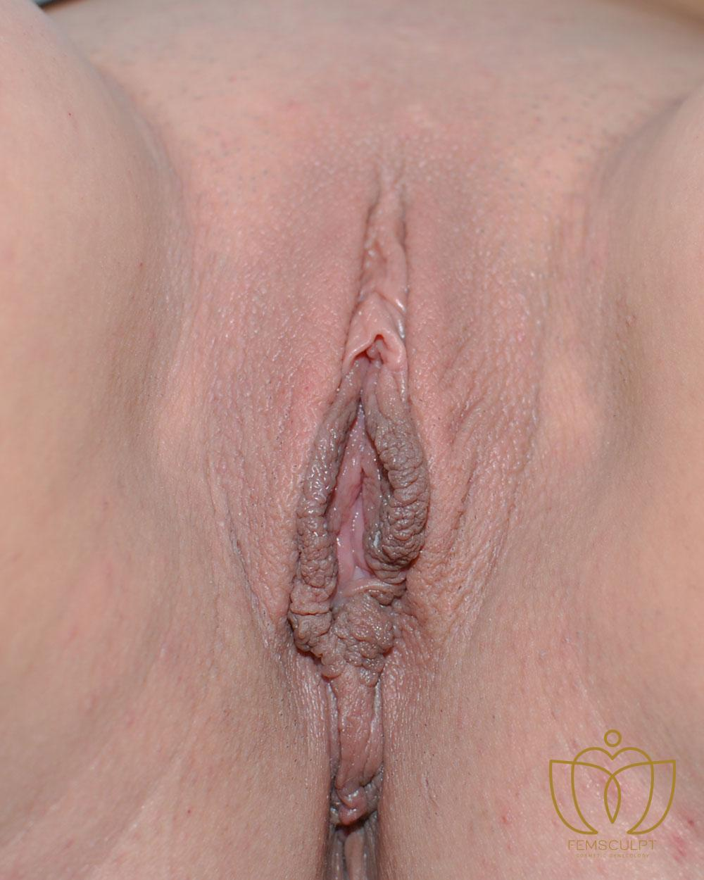 1. LABIA MINORA REDUCTION -Standing Patient Photo - Case 614 - after view-1