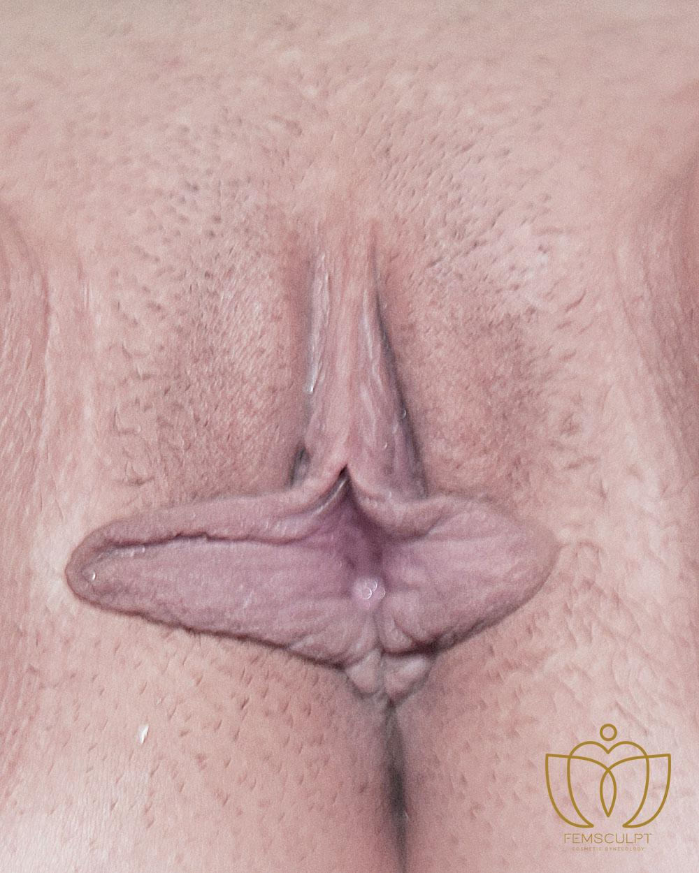 1. LABIA MINORA REDUCTION -Standing Patient Photo - Case 669 - before view-1