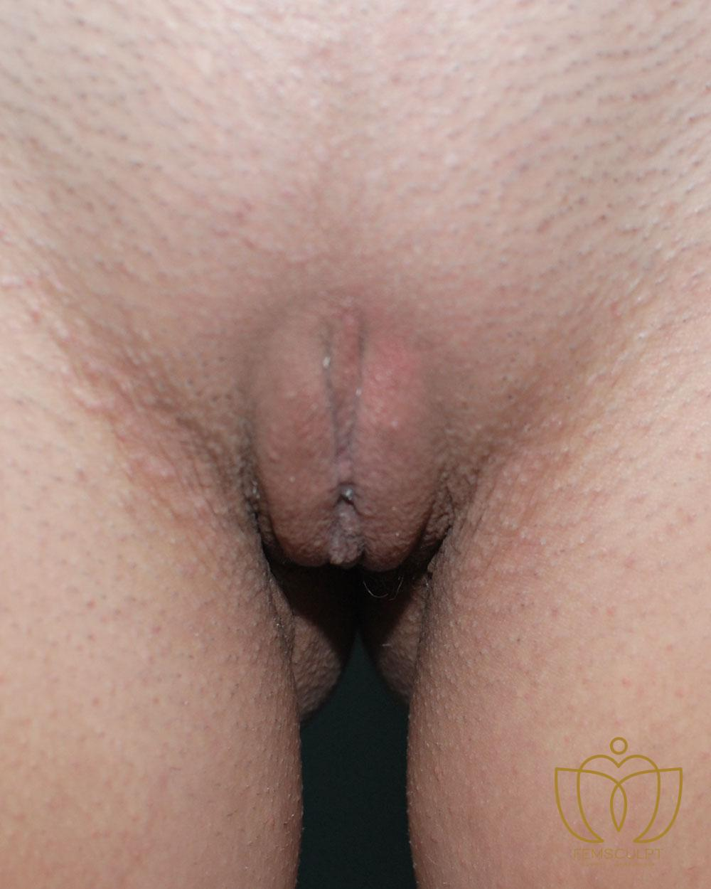 2. Labia Minora Reduction- Lithotomy Patient Photo - Case 649 - after view-1