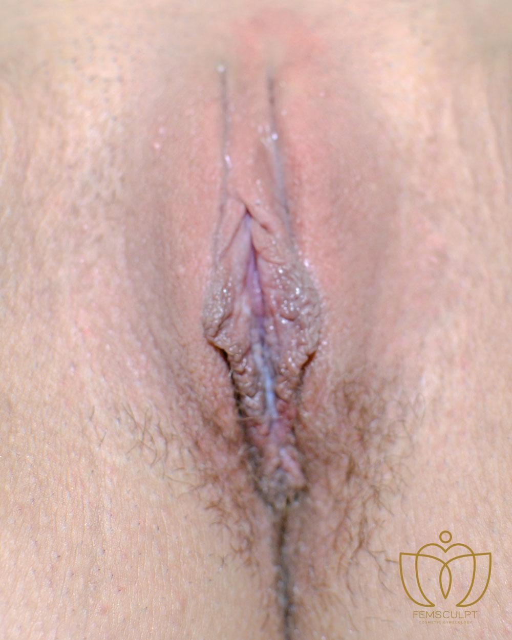 1. LABIA MINORA REDUCTION -Standing Patient Photo - Case 643 - after view-1