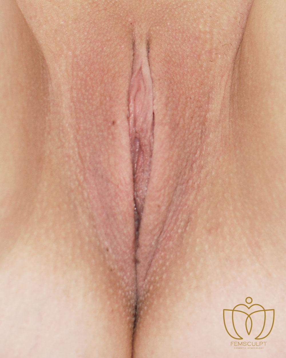 2. Labia Minora Reduction- Lithotomy Patient Photo - Case 687 - after view