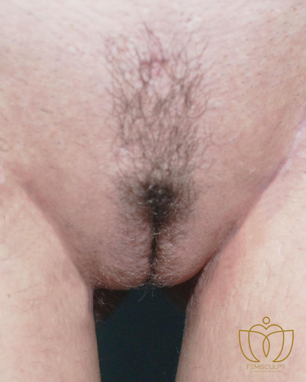 4. Labia Majora - Labial Puff Standing Patient Photo - Case 907 - after view-0