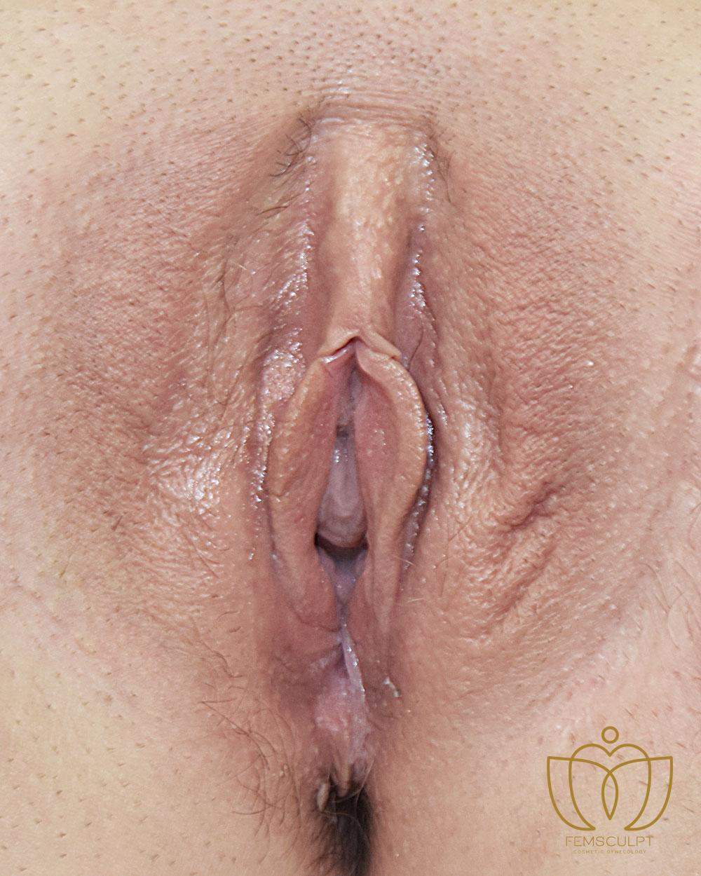 4. Labia Majora - Labial Puff Standing Patient Photo - Case 907 - before view-1