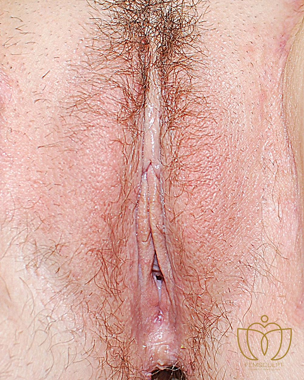 4. Labia Majora - Labial Puff Standing Patient Photo - Case 907 - after view-1