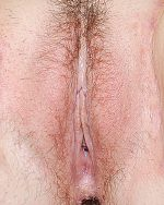 5. Labia Majora - Labial Puff Lithotomy - Case 904 - After