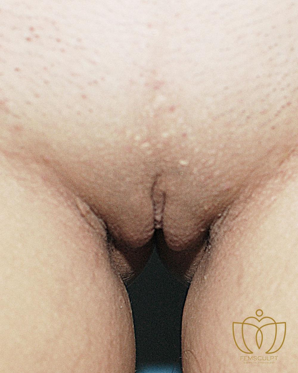 1. LABIA MINORA REDUCTION -Standing Patient Photo - Case 919 - after view