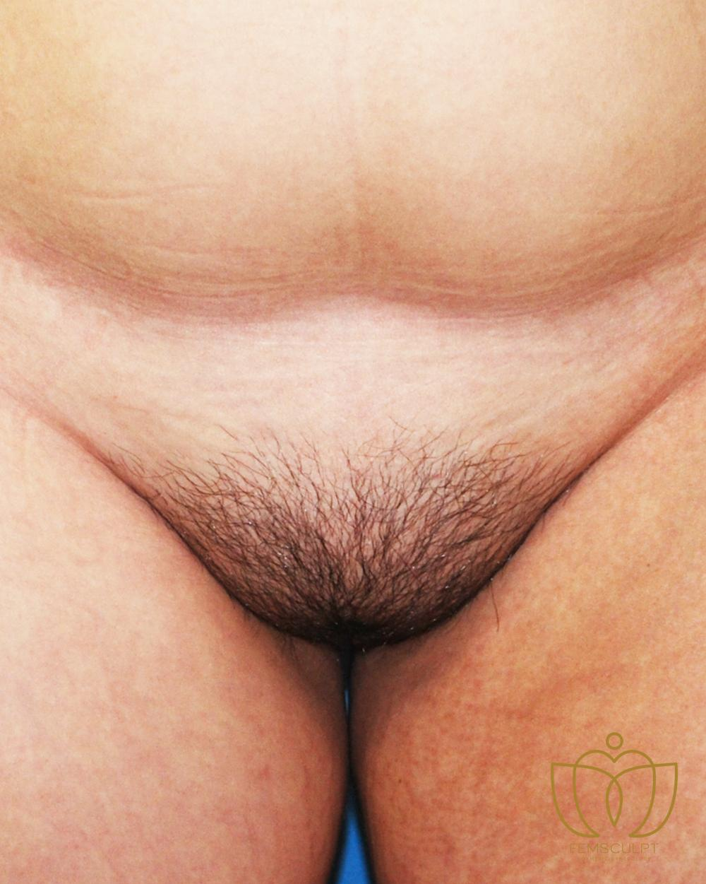 6. Mons Pubis Reduction Patient Photo - Case 937 - before view-
