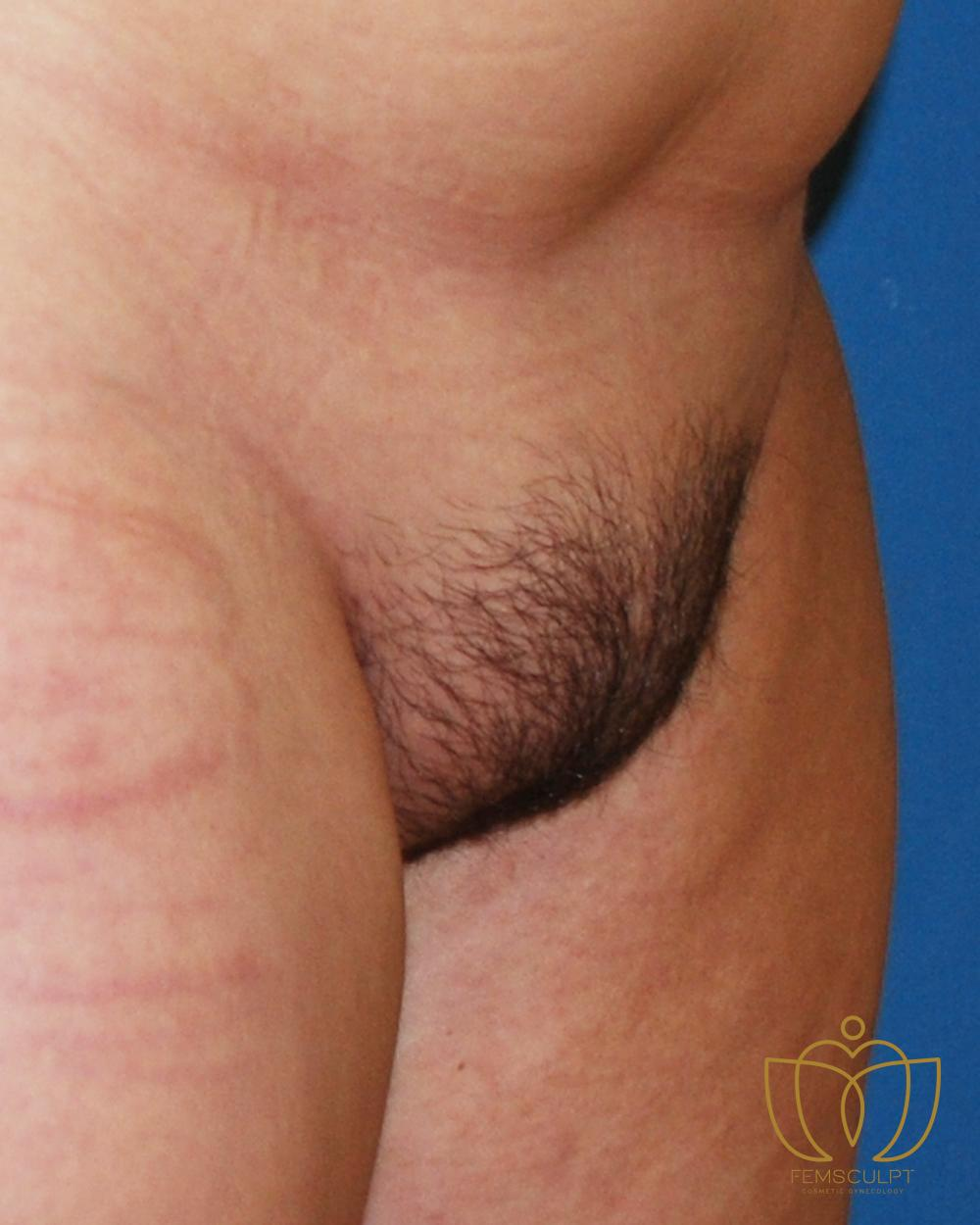 6. Mons Pubis Reduction Patient Photo - Case 937 - before view-1