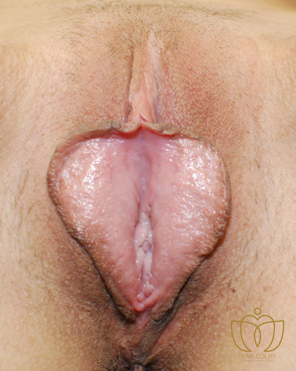 1. LABIA MINORA REDUCTION -Standing Patient Photo - Case 978 - before view-1