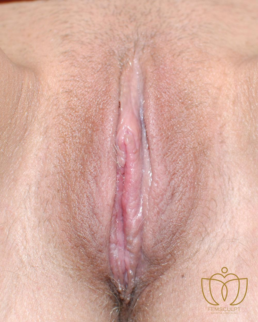 1. LABIA MINORA REDUCTION -Standing Patient Photo - Case 978 - after view-1