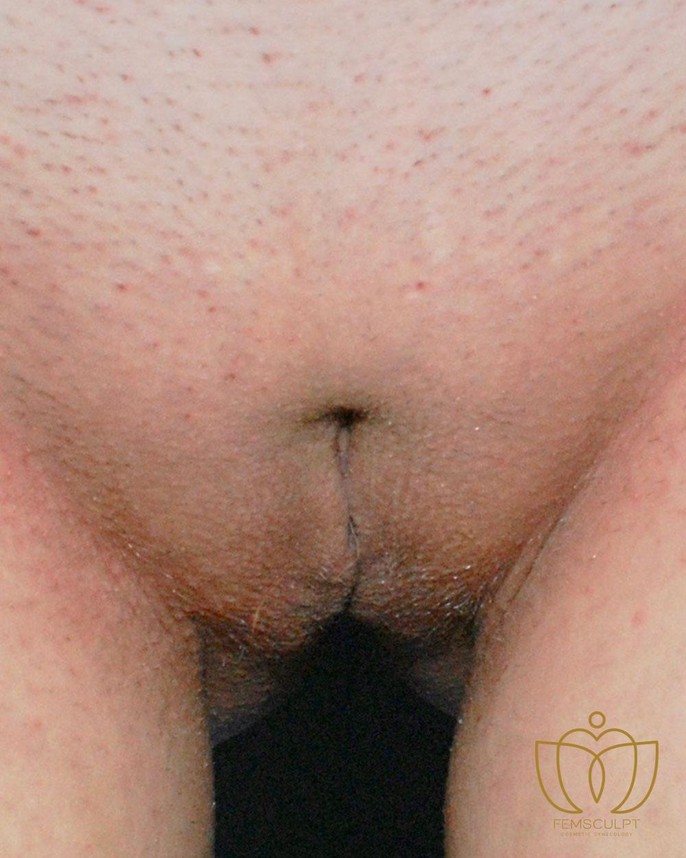 1. LABIA MINORA REDUCTION -Standing Patient Photo - Case 1037 - after view