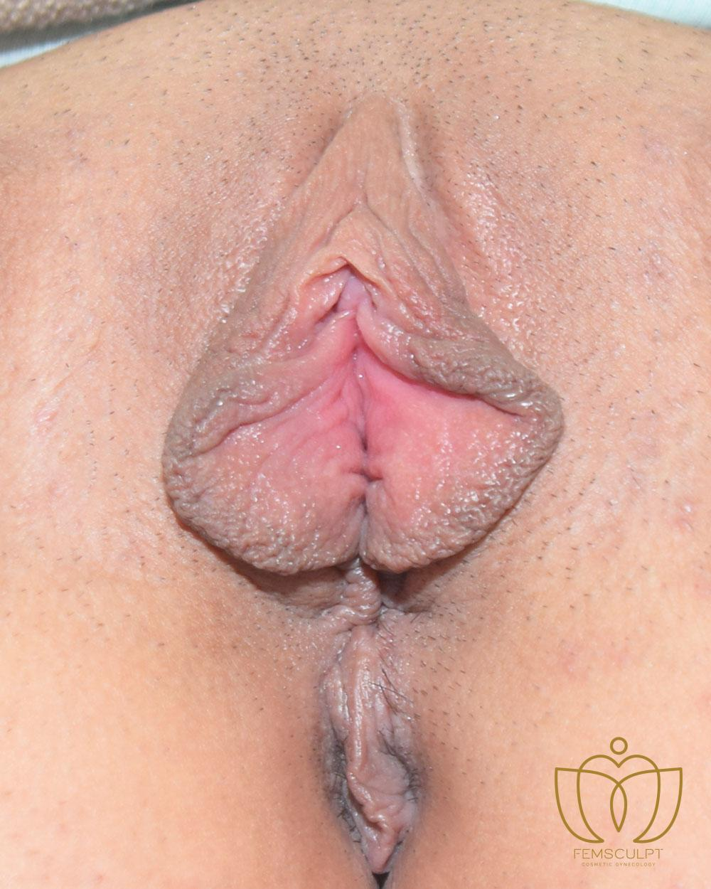 1. LABIA MINORA REDUCTION -Standing Patient Photo - Case 1002 - before view-1