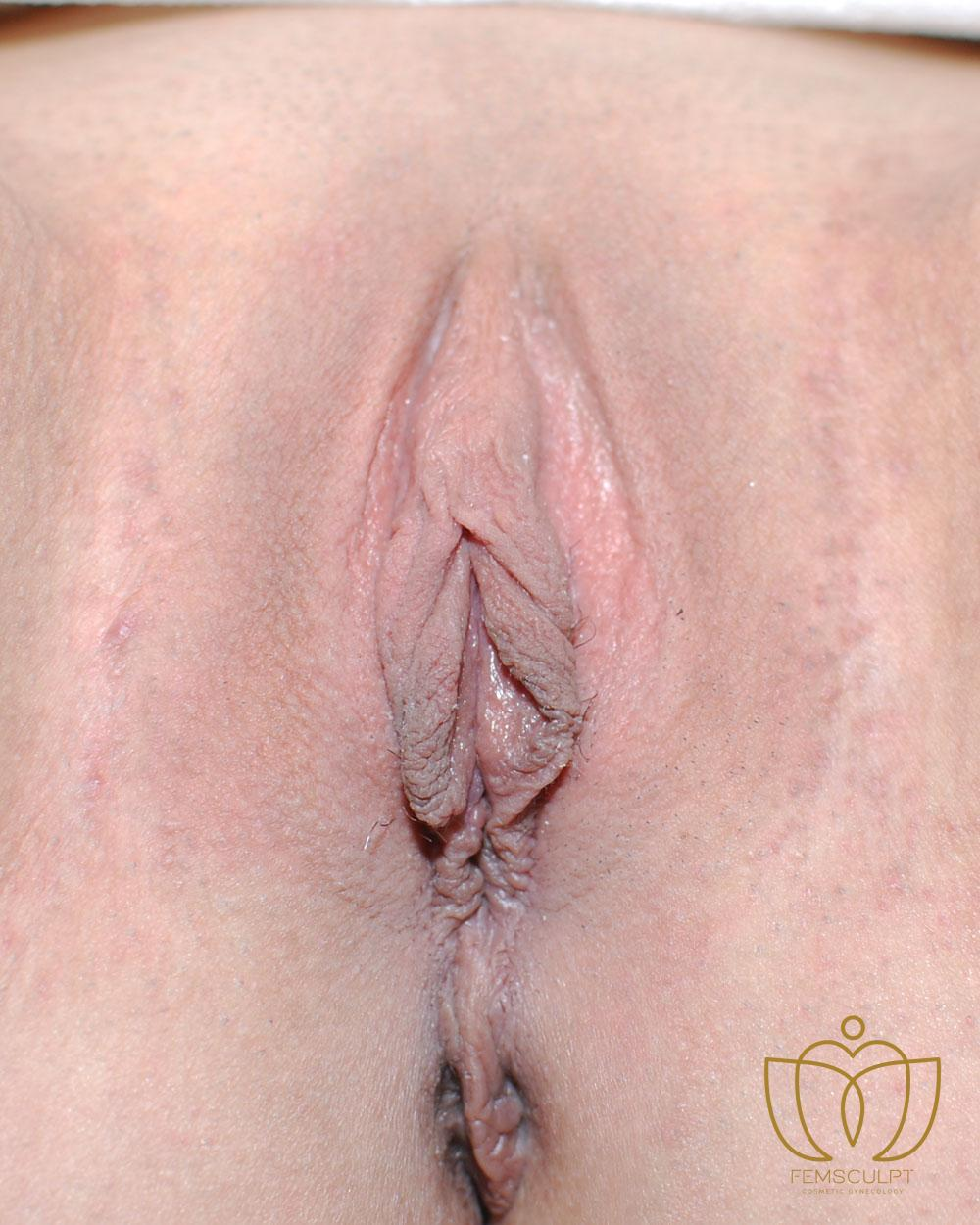 1. LABIA MINORA REDUCTION -Standing Patient Photo - Case 1002 - after view-1