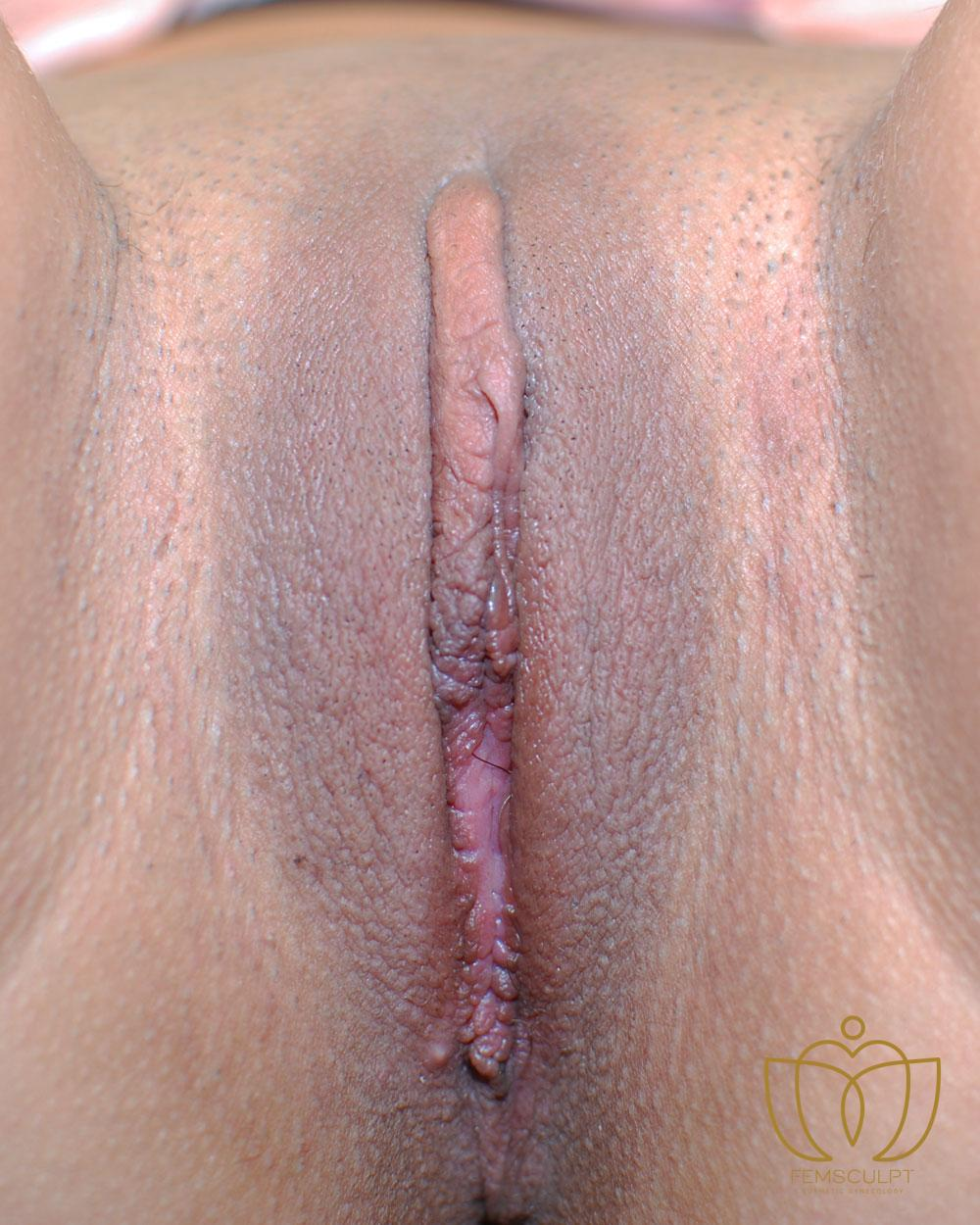2. Labia Minora Reduction- Lithotomy Patient Photo - Case 1018 - after view