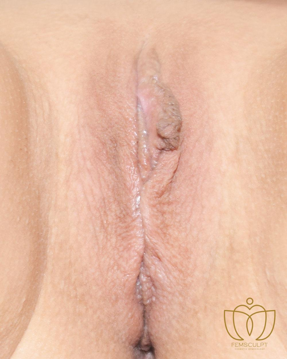 4. Labia Majora - Labial Puff Standing Patient Photo - Case 1086 - before view-1