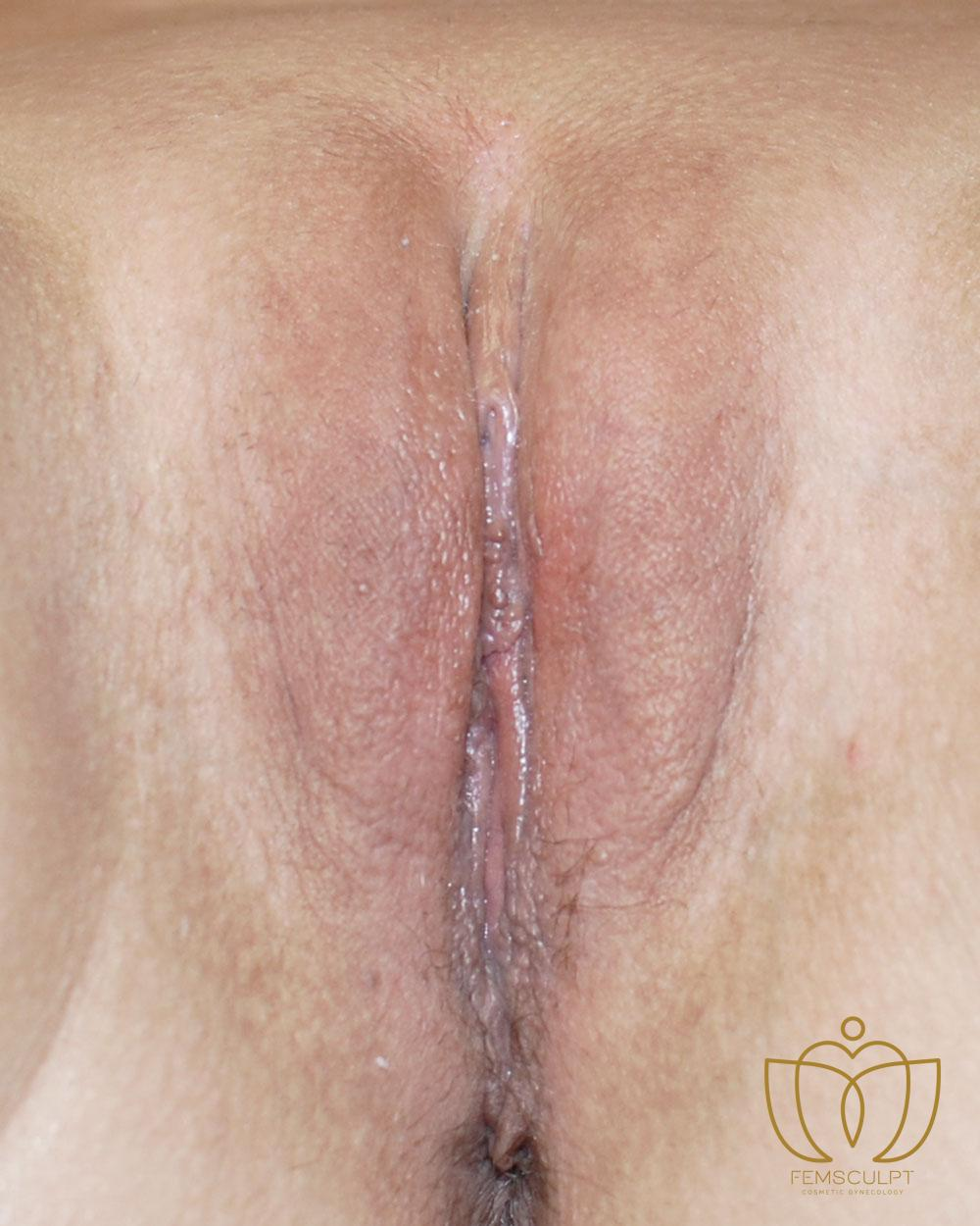 4. Labia Majora - Labial Puff Standing Patient Photo - Case 1086 - after view-1